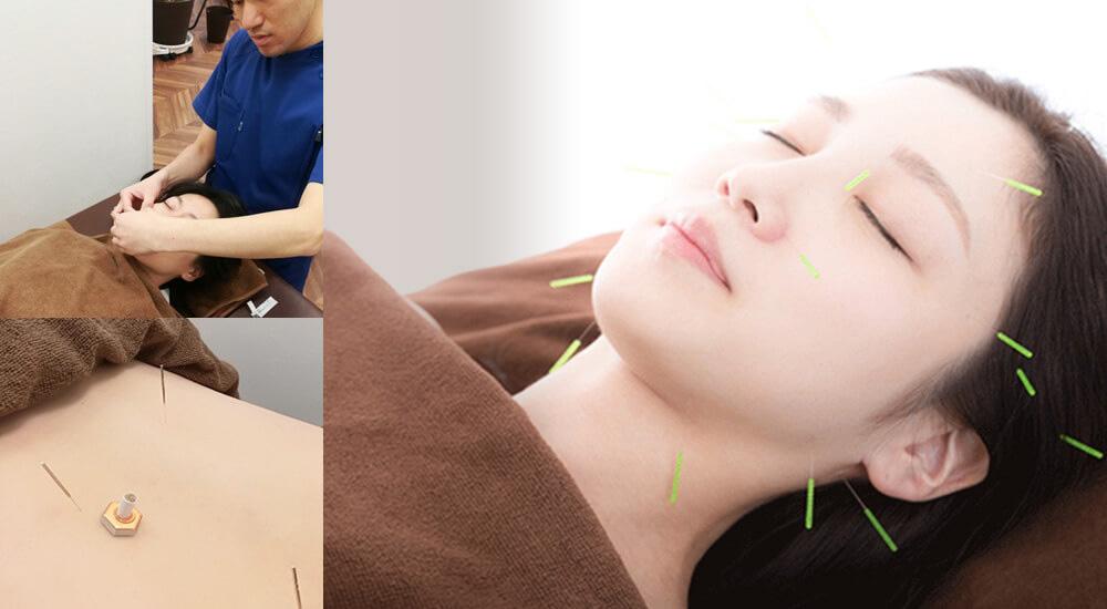 まほろば接骨鍼灸院の得意なこと02 鍼灸メニュー